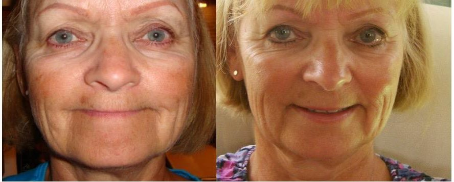 Gail's Face Before and After At Forty Five